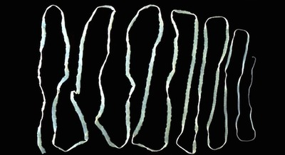 Tape worms can live in human intestines for up to 25 years. The largest ever found was 82 feet long.