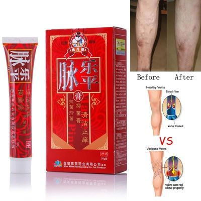 Varicose Veins Treatment Cream $19.97