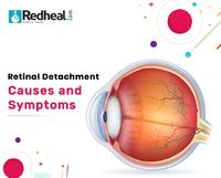 Retinal detachment, a situation where the retina, located at the back of the eye, shift from its normal position. Retinal detachment also leads to separation of retinal cells from the blood vessel layer thus effecting. https://www.redheal.com/blog/eye/re...