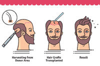 If you have lost your all the hair on the scalp and you have no option to recover your hair on the scalp. However, if you still have some hair on your head, At Kabera Global Clinic We provide the best hair transplant treatment which helps you recover your...
