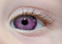 Alexandria's Genesis, also known as �€violet eyes�€ (a mutation). When someone is born with Alexandria's Genesis, his eyes are blue or gray at birth.After six months, the eyes begin to change their original color to purple,...