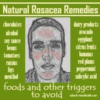 Natural rosacea remedies: foods and other triggers to avoid