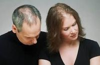 Best Products of Hair Regrowth http://goo.gl/9jUr4e The usual time frame from the first signs of hair loss to complete loss of hair seems to be between 15 and 25 years. So thinning hair in your late 20's may mean sporting a shiny scalp by the time...